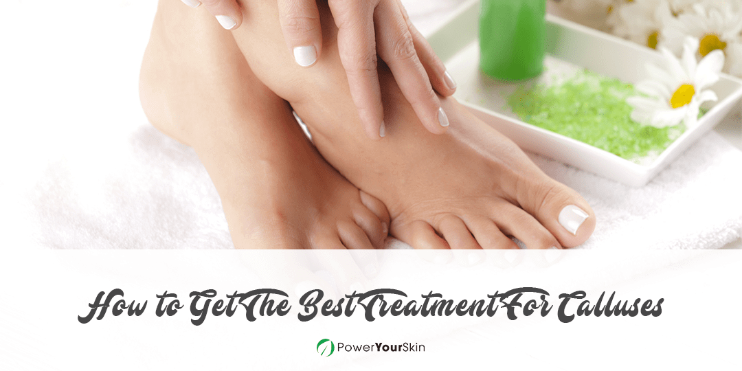 How to Get The Best Treatment For Calluses