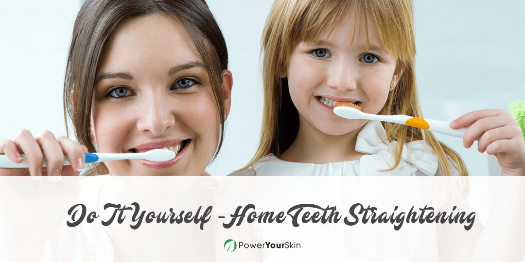 DIY at Home Teeth Straightening