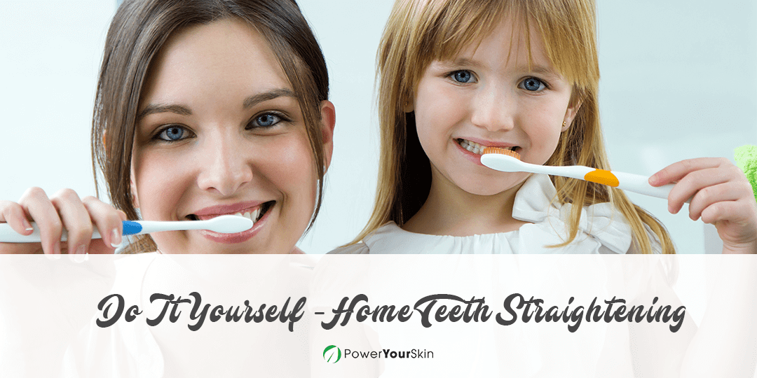 DIY at Home Teeth Straightening