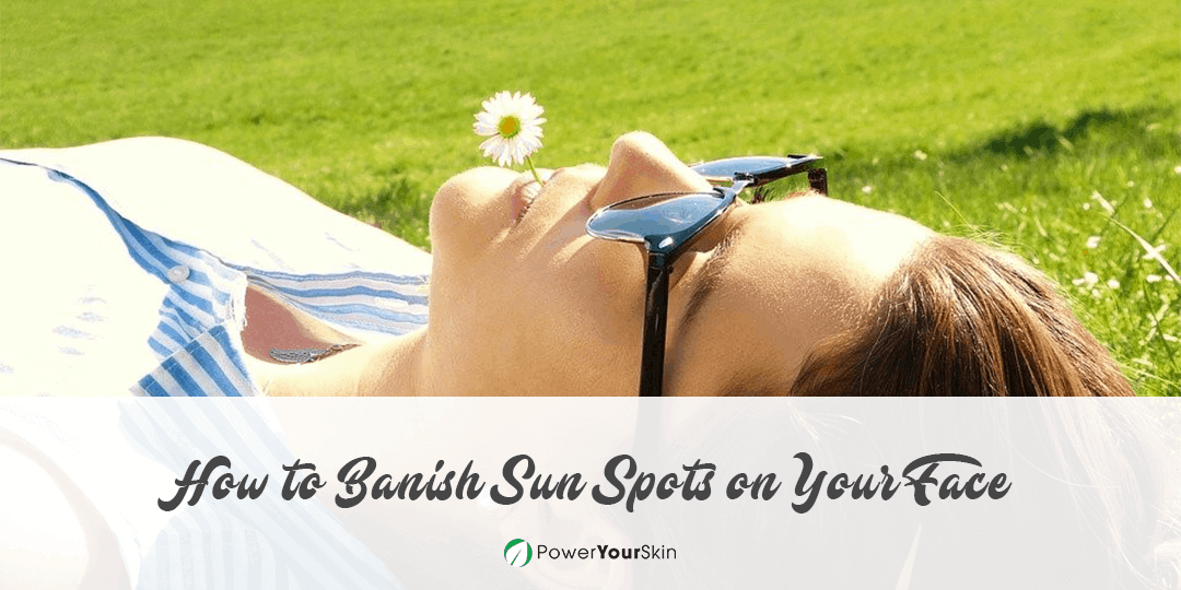 How to Banish Sun Spots on Your Face